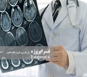 تحقیق پرفیوژن سی تی در سکته مغزی